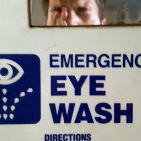 Chemical and burn eye injuries