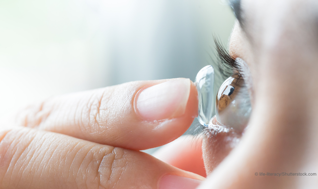 3 Tips To Better Fit Keratoconus With Sclerals
