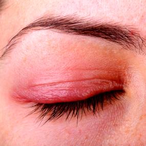 Ocular Rosacea Miami