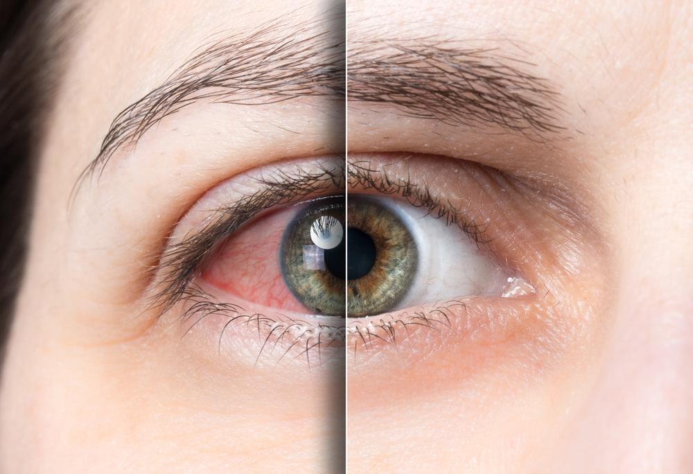 دود سیگار سلولهای چشم را میکشد