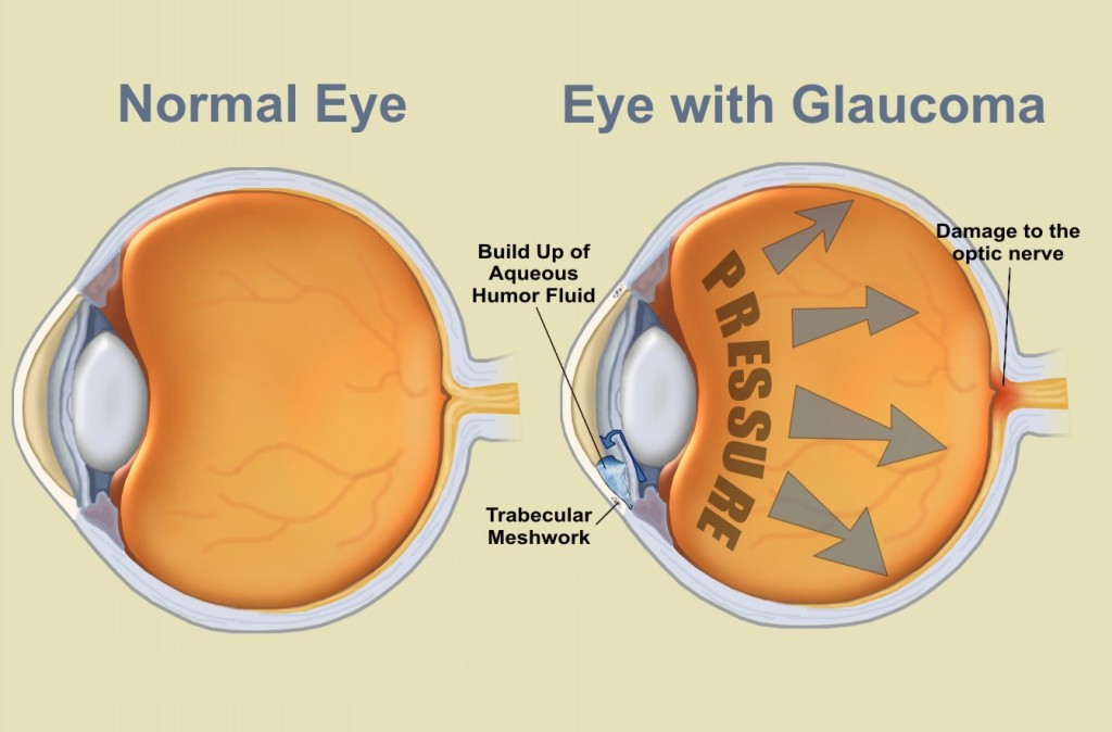 Normale Eye vs. Eye with Glaucoma