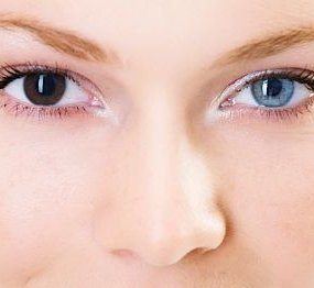 about heterochromia and two different eye colors