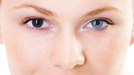 Heterochromia Different Colored Eyes Causes And Types