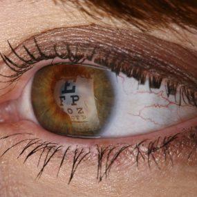 How an Optometrist Diagnoses Keratoconus Patients