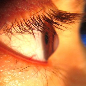 Contact Lenses for Keratoconus