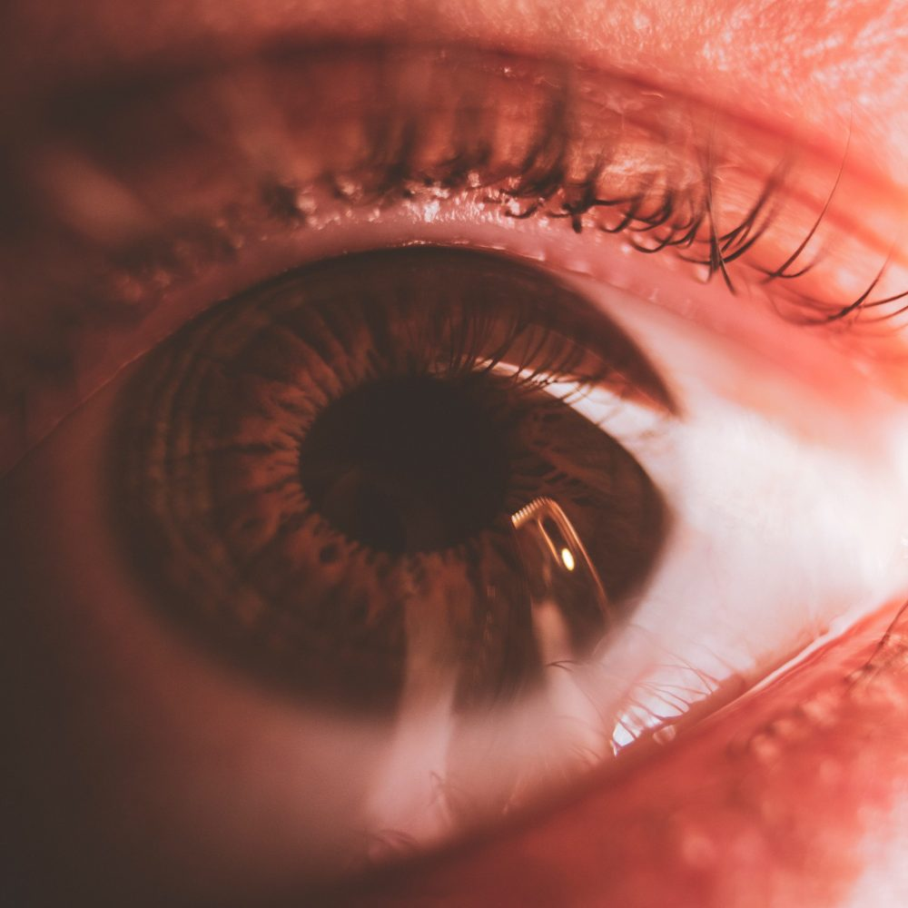 Graft Versus Host Disease Eye Problems