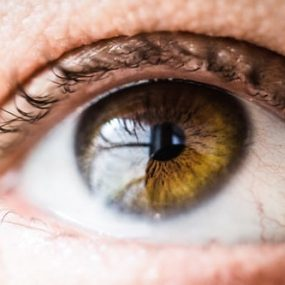 Five-Celebrities-Living-with-Keratoconus