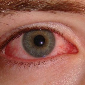 Sjogren's Syndrome Dry Eye