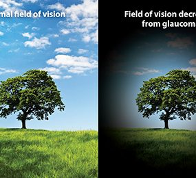 Glaucoma Eyesight picture