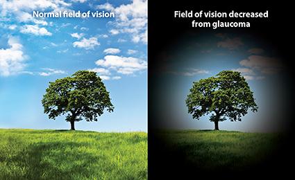 Glaucoma Eyesight picture